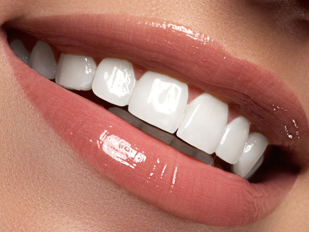 Tailor your teeth whitening to your needs