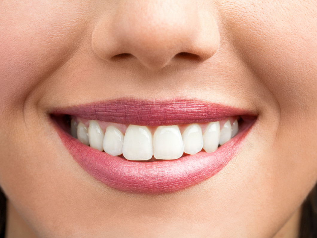 Teeth whitening services in Jensen Beach, Florida